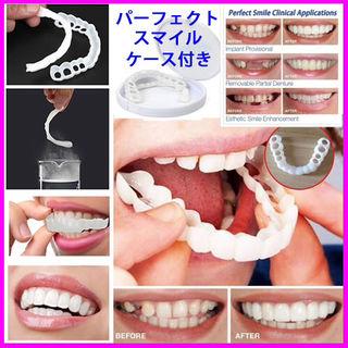 パーフェクトスマイル 付け歯 歯の欠損などをカバー