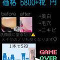 お試し価格2万円off!!! 5本分