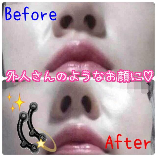 【XS~Mセット】整形級に鼻が高くなる★矯正鼻プチ - フリマアプリ&サイトShoppies[ショッピーズ]