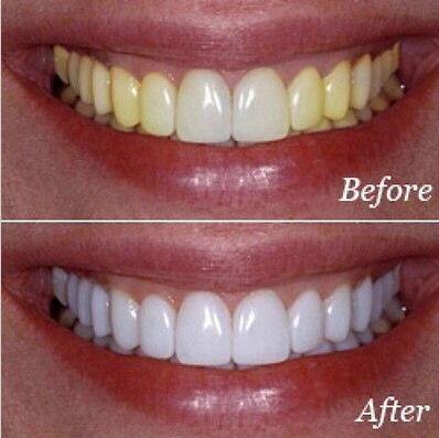 綺麗な白い歯にするホワイトニング ストリップス