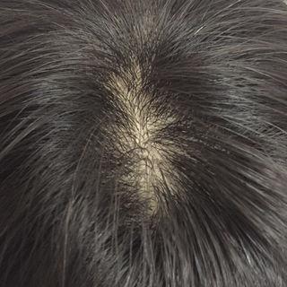 人毛100%総手植え新品ヘアトップピース  分け目なしタイプ